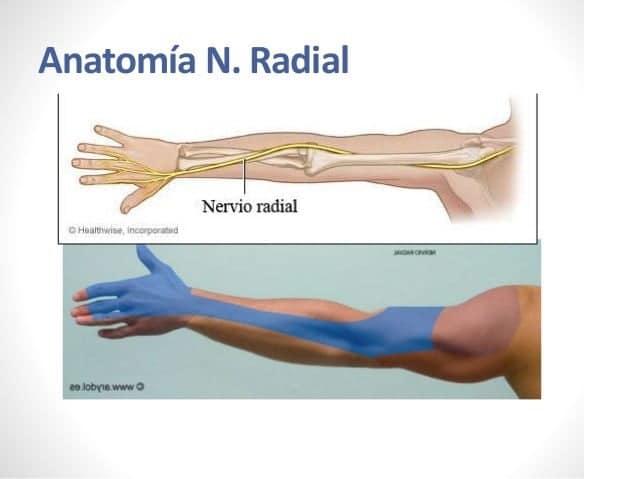 Nervio Radial (Anatomia, función, inervación, lesiones)natomía ...