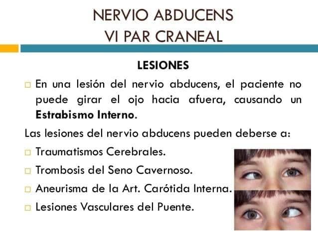 nervios abducens