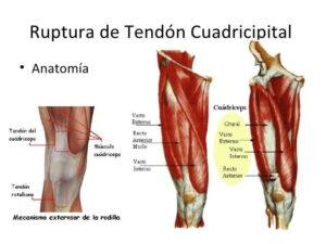 Musculo cuadriceps femoral
