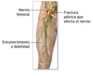 nervio femoral