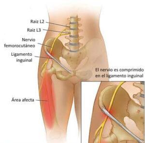 nervio femorocutáneo