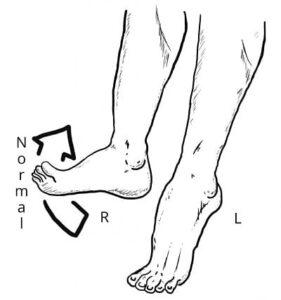 nervio peroneo comun