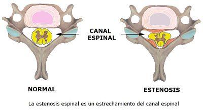vértebras dorsales
