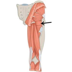 músculo cuadrado femoral