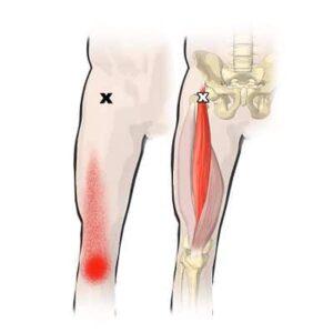 músculo recto femoral