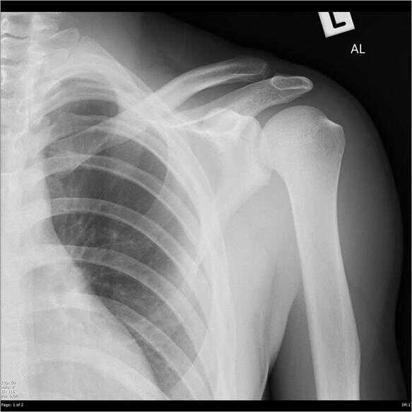 Dislocación acromioclavicular