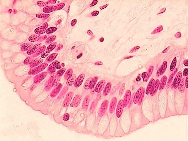 Epitelio columnar estratificado