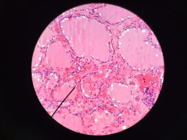 Histología de la glándula tiroides